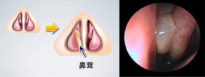 鼻茸症(はなたけしょう)