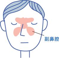 副鼻腔炎(ふくびくうえん)