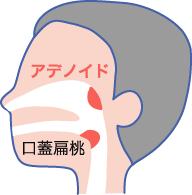 アデノイド(咽頭扁桃)肥大
