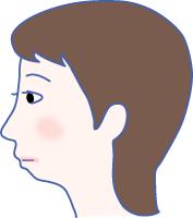 小顎症(しょうがくしょう)